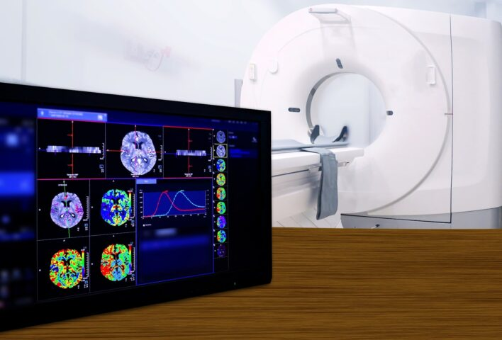 Teleradiology Solutions India